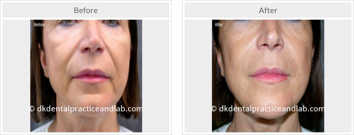 Botulinum Toxin & Dermal Fillers - DK Dental Practice & Lab